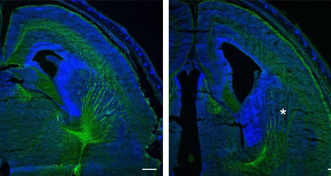 Schaltet man das Protein CAP1 aus (Bild rechts), so bilden sich im Gehirn weniger Nervenfasern (grün gefärbt) als normalerweise (Bild links). Das Sternchen in der mikroskopischen Aufnahme zeigt, wo Nervenfasern fehlen. Foto: Felix Schneider