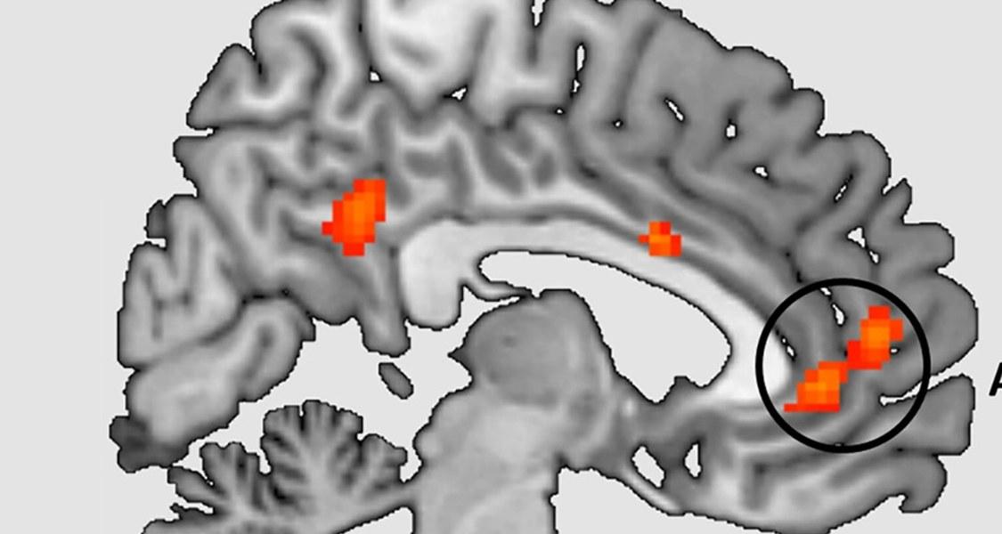 Eine Behandlung mit Kognitiver Verhaltenstherapie reduziert Panikattacken und Vermeidungsverhalten, vermutlich indem sie anormale Hirnaktivität dämpft.